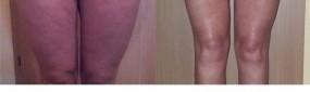Uda - przed i po zabiegu Cavi-Lipo