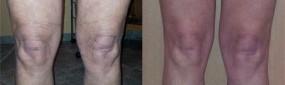Okolice kolan - przed i po zabiegu Cavi-Lipo